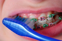 Braces Care - Orthodontics in Corpus Christi, TX