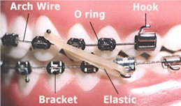 Orthodontic Terms - Orthodontics in Corpus Christi, TX
